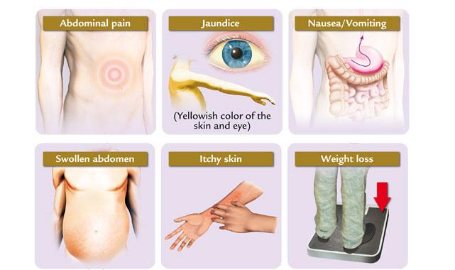 liver cancer alternative treatment, Sphenoid